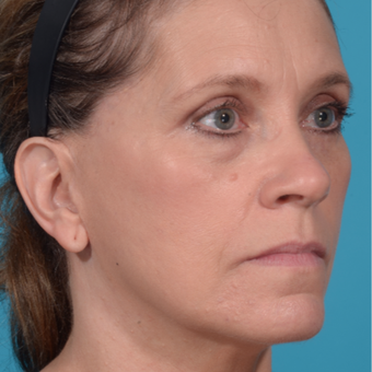 55-64 year old woman treated with Facelift after 3299697