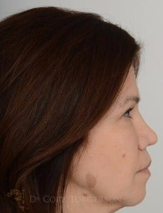 45-54 year old woman treated with Rhinoplasty after 3258708