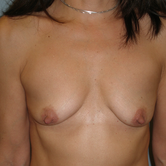 45-54 year old woman treated with Breast Augmentation before 3103544