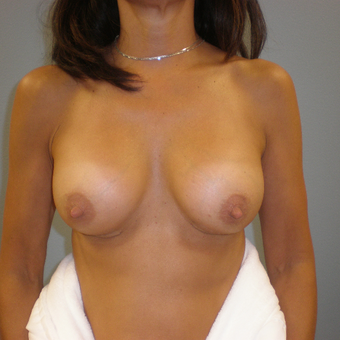 45-54 year old woman treated with Breast Augmentation after 3103544