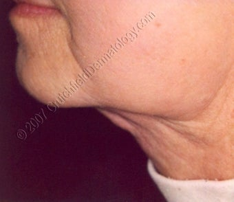 LipoDissolve injections to neck fat after 9740