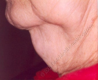 LipoDissolve injections to neck fat before 9740
