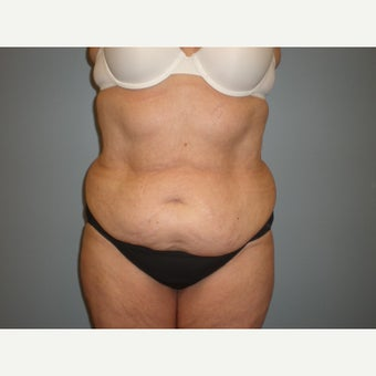 65-74 year old woman treated with Tummy Tuck before 2401843