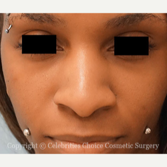 25-34 year old woman treated with African American Rhinoplasty before 3853528