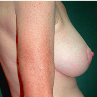 51 year old woman treated with Breast Lift with Implants after 3665903