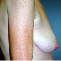 51 year old woman treated with Breast Lift with Implants before 3665903