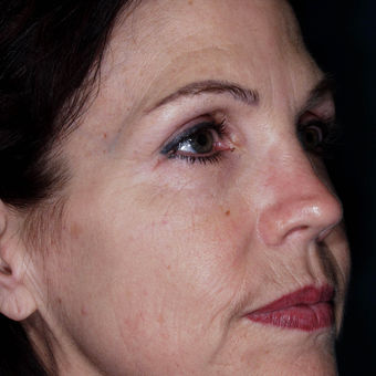 45-54 year old woman was treated to improve skin Wrinkles - wrinkle treatment after 3841214