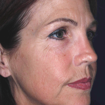 45-54 year old woman was treated to improve skin Wrinkles - wrinkle treatment before 3841214