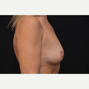 35-44 year old woman treated with Breast Augmentation before 3265279