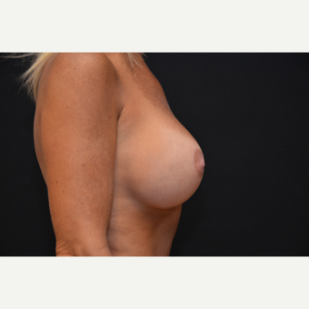 35-44 year old woman treated with Breast Augmentation after 3265279