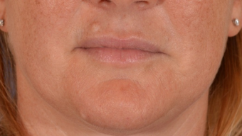 35-44 year old woman treated with Mole Removal of upper lip and chin before 1558495