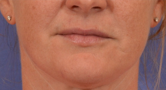 35-44 year old woman treated with Mole Removal of upper lip and chin after 1558495