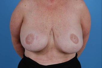 58 year old post mastectomy after 1355454