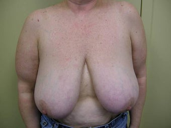 58 year old post mastectomy before 1355454