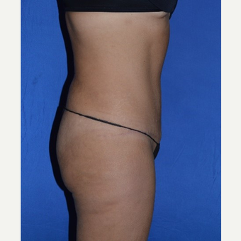 35-44 year old woman treated with No-Drain Tummy Tuck after 3655688