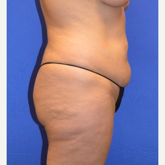 35-44 year old woman treated with No-Drain Tummy Tuck before 3655688