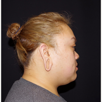 18-24 year old woman treated with Ear Lobe Surgery before 3741685