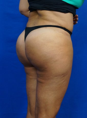 Gluteal Augmentation (Butt Lift)  Fat Grafting 1439760