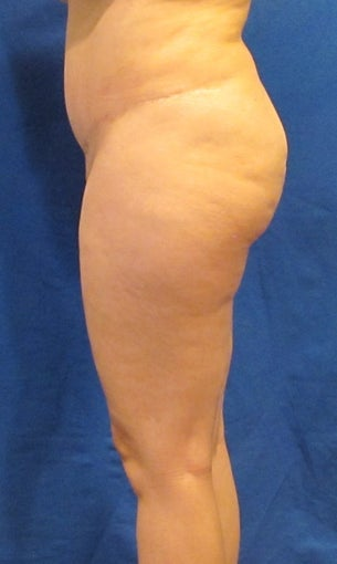 Gluteal Augmentation (Butt Lift)  Fat Grafting before 1439760