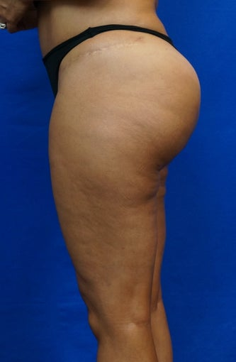 Gluteal Augmentation (Butt Lift)  Fat Grafting after 1439760