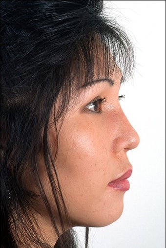 Rhinoplasty after 951816