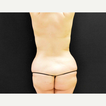 35-44 year old woman treated with Liposculpture before 3201405