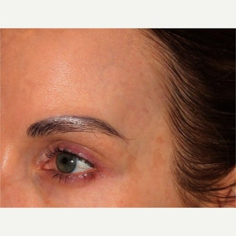 41 year old woman treated with Cooltouch laser for blue veins in temple/under eye area
