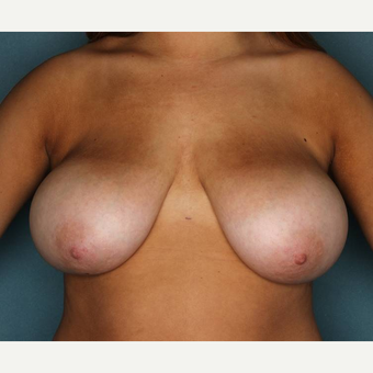 18-24 year old woman treated with Breast Reduction before 3442329