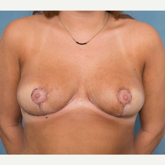 18-24 year old woman treated with Breast Reduction after 3442329