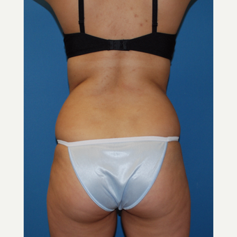 25-34 year old woman treated with SculpSure before 3411729