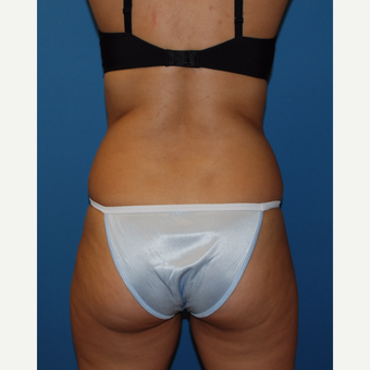 25-34 year old woman treated with SculpSure after 3411729
