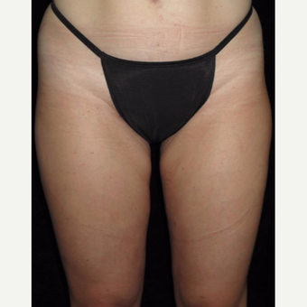 31 year old woman treated with Liposuction of Thighs after 3251591
