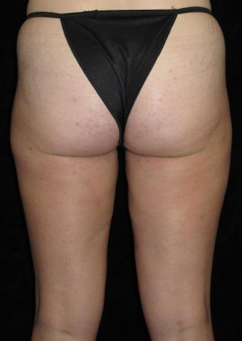 31 year old woman treated with Liposuction of Thighs 3251591