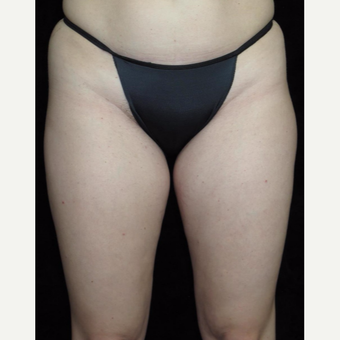 31 year old woman treated with Liposuction of Thighs before 3251591
