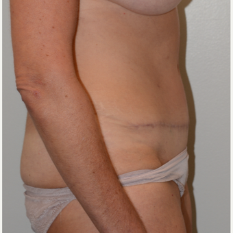 45-54 year old woman treated with Tummy Tuck after 3440982