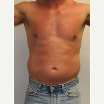 35-44 year old man treated with Vaser Liposuction before 2814653
