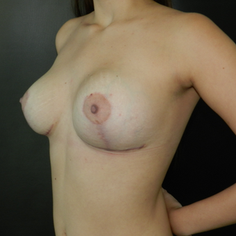 18-24 year old woman treated with Breast Lift with Implants after 3056608