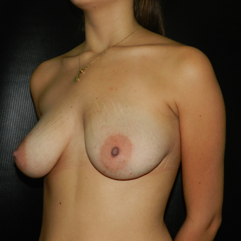 18-24 year old woman treated with Breast Lift with Implants before 3056608