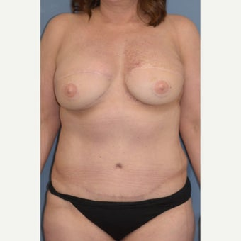 35-44 year old woman treated with Breast Reconstruction after 1835990