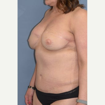 35-44 year old woman treated with Breast Reconstruction 1835990