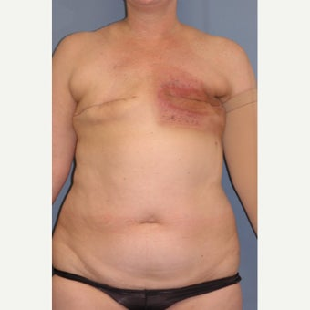 35-44 year old woman treated with Breast Reconstruction before 1835990