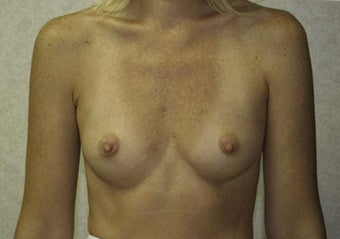 32 yr old female silicone gel implants 350cc sub-glandular before 972133