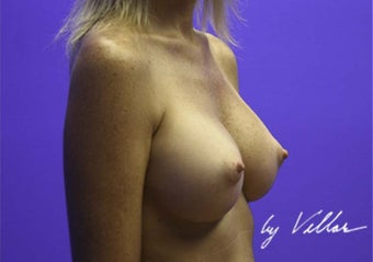 32 yr old female silicone gel implants 350cc sub-glandular 972133