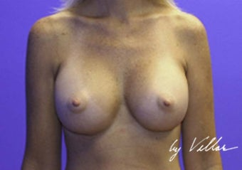 32 yr old female silicone gel implants 350cc sub-glandular after 972133