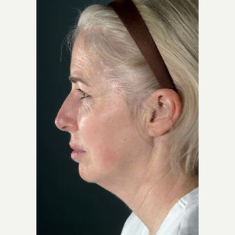 45-54 year old woman treated with Neck Lift before 3097474