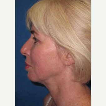 45-54 year old woman treated with Neck Lift after 3097474