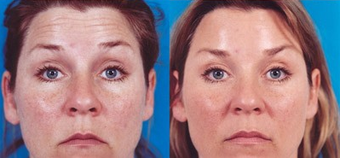 39-year-old woman treated with Botox. after 574299