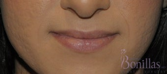 26 y/o female desired permanent lip augmentation. before 1137294