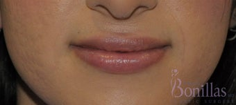 26 y/o female desired permanent lip augmentation. after 1137294
