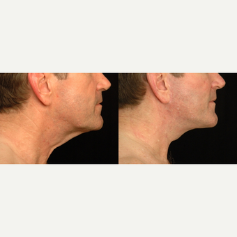 55-64 year old man treated with Neck Lift before 3658791